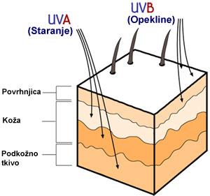 UV škoda